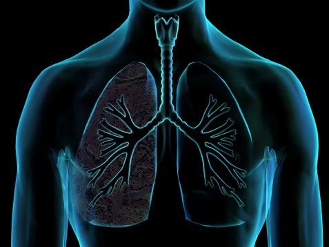 """Pneumonia: O Alerta, no seu """"Dia"""""""