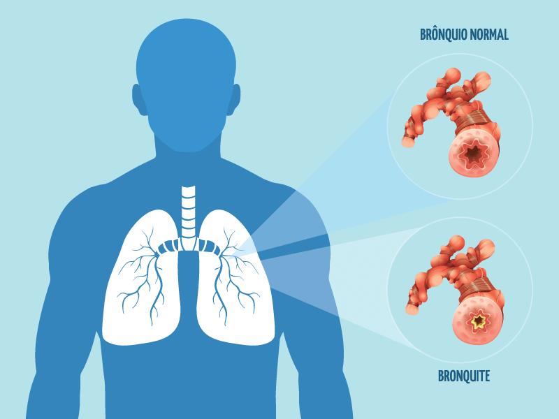 Bronquite: como diminuir os sintomas?