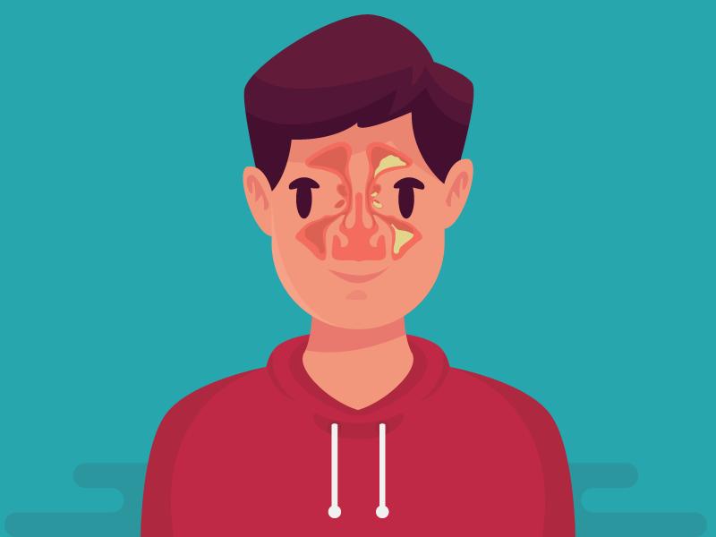 Sinusite: sintomas, causas e algumas dicas